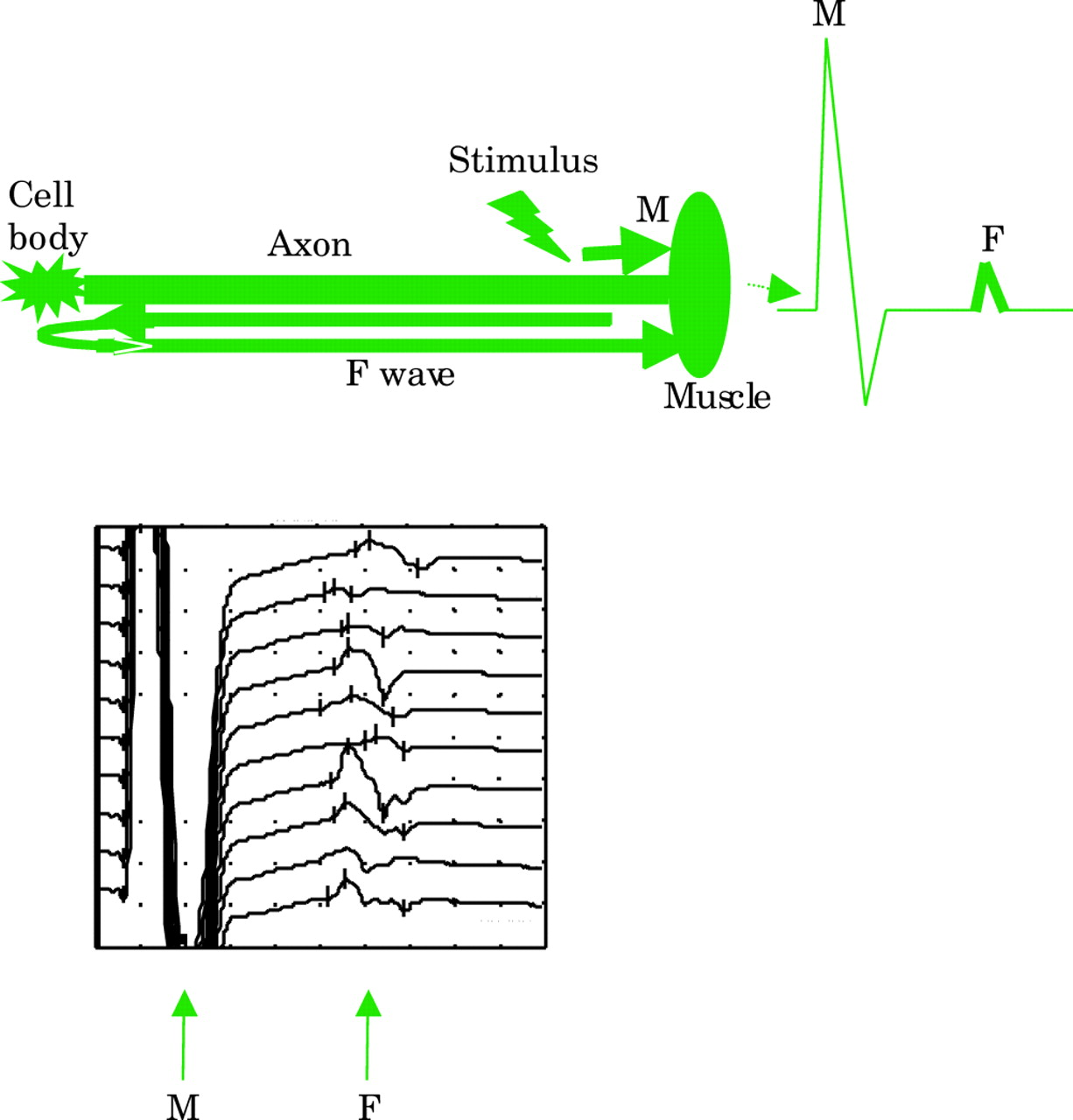 Nerve Conduction Studies Essentials And Pitfalls In Practice Figure 5 Schematic Diagram Of The Electromyography Emg Detecting Download