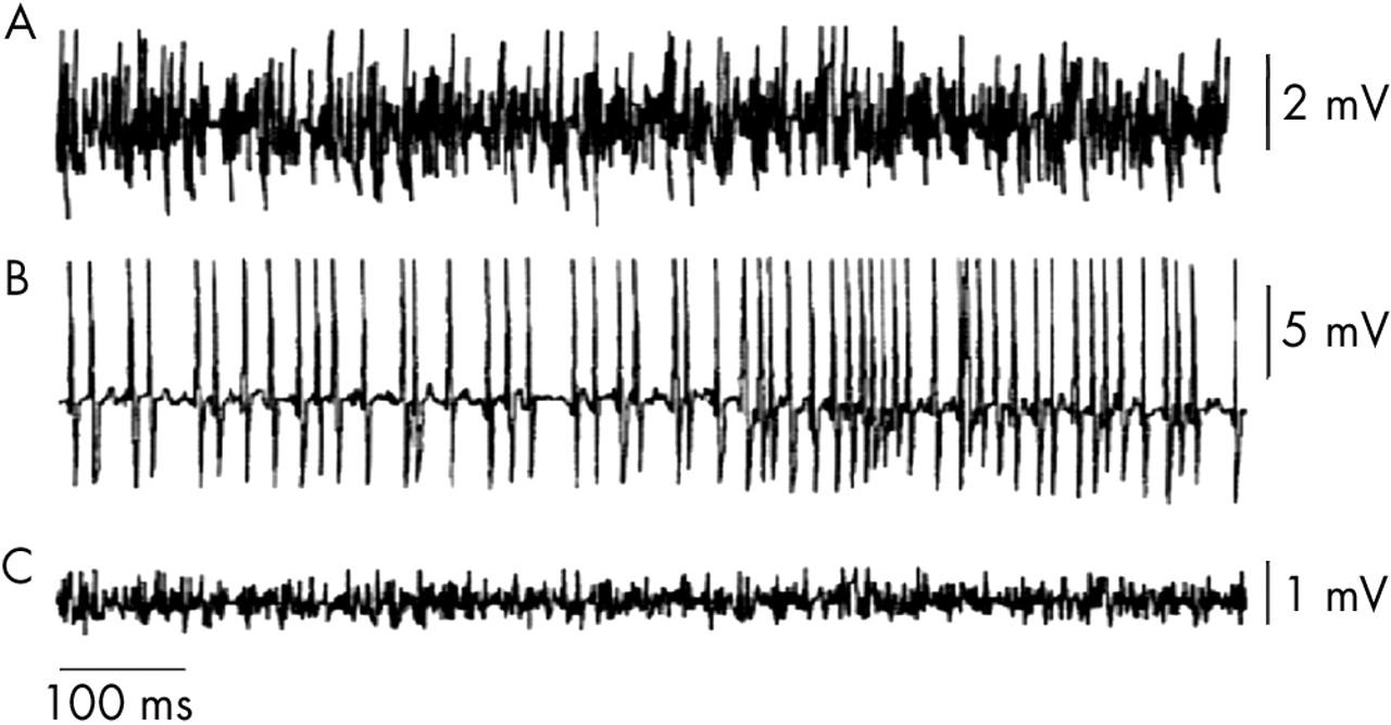 The Basics Of Electromyography Journal Neurology Neurosurgery 28314401 Maintainedswitchwiringformagneticmotorstarternotes Download Figure