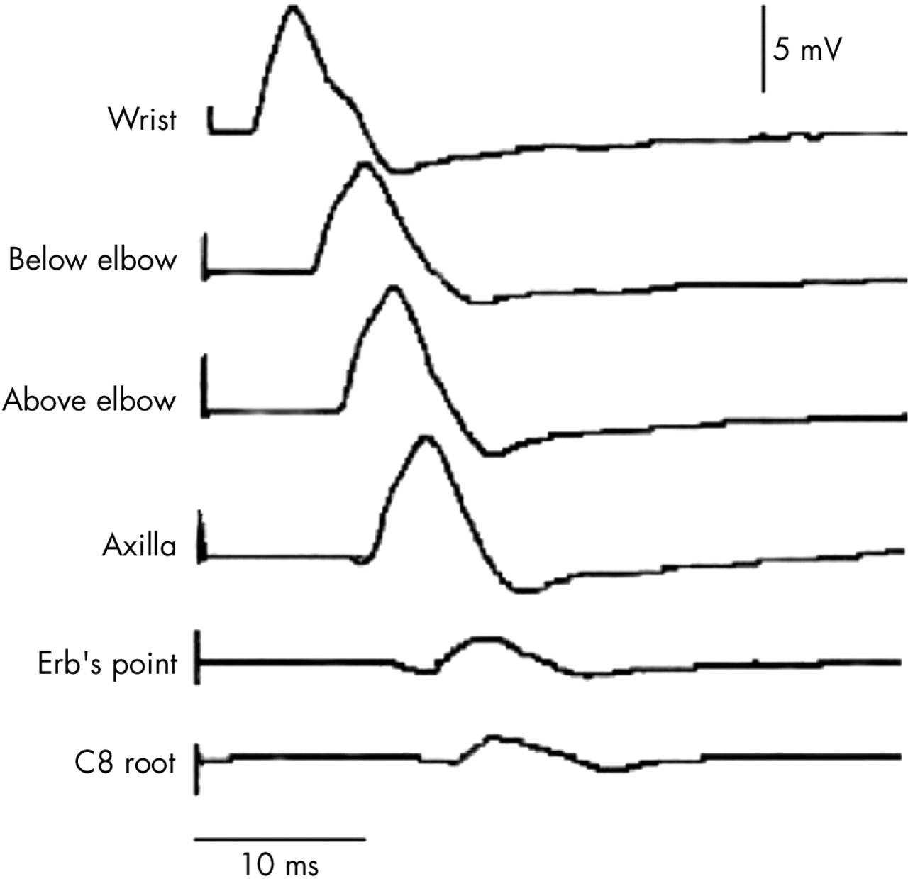 Specialised Electromyography And Nerve Conduction Studies