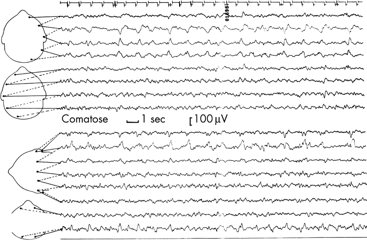 EEG in neurological conditions other than epilepsy: when