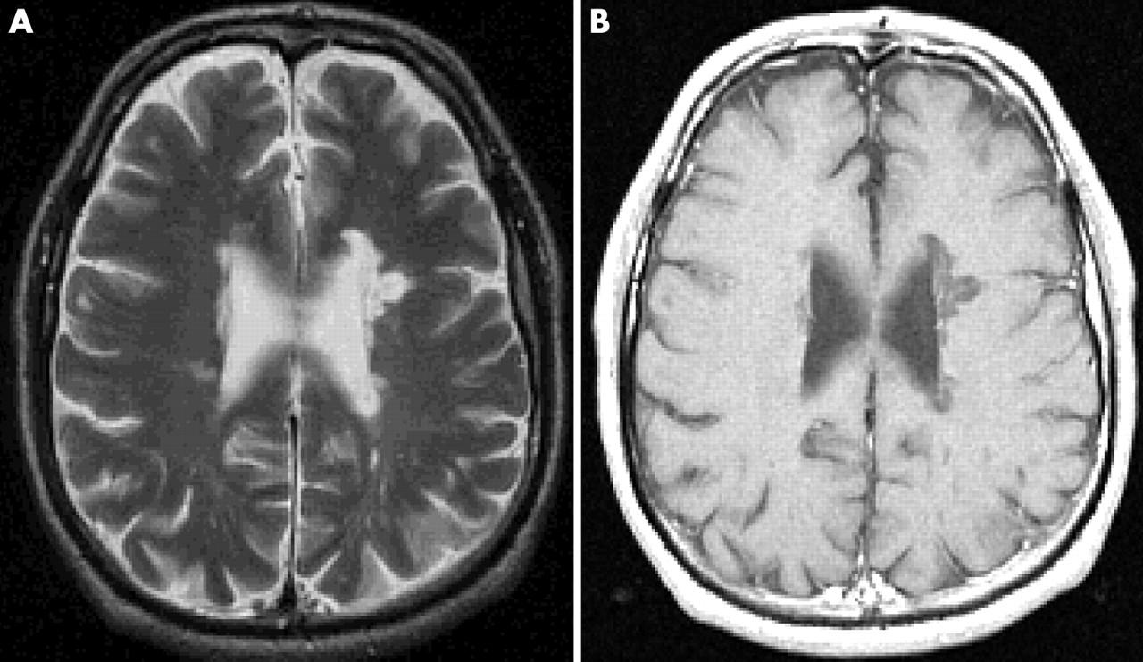 Imaging in multiple sclerosis | Journal of Neurology