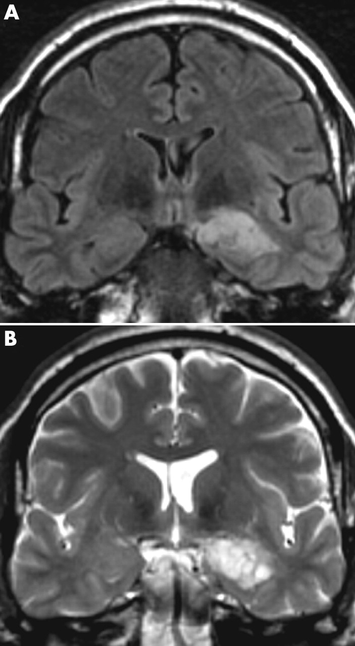 Imaging in epilepsy | Journal of Neurology, Neurosurgery & Psychiatry