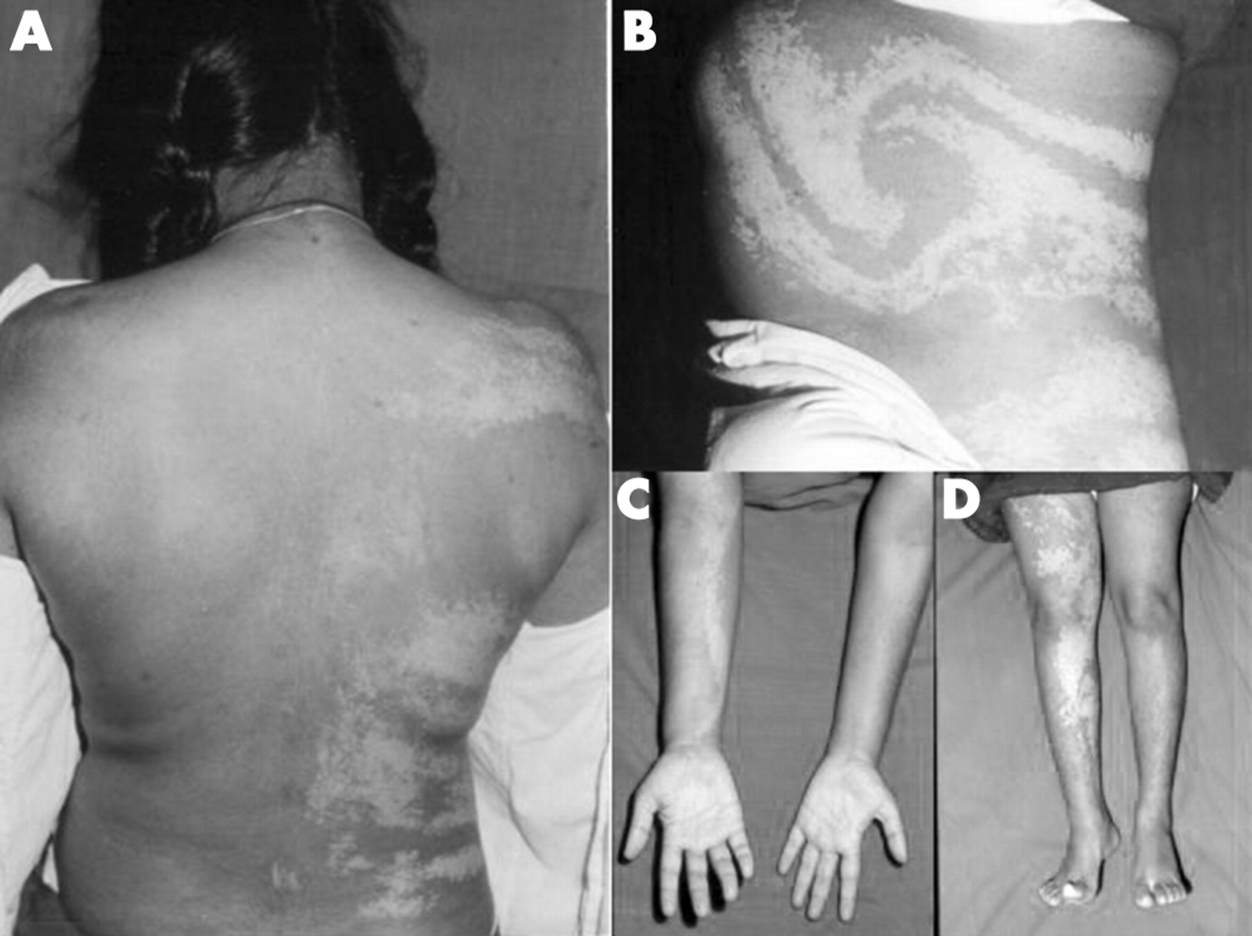 skin lesions extremities