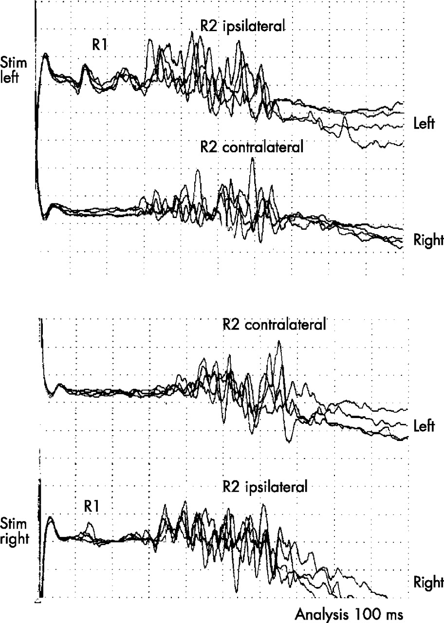 """blink response journal Abstract a reflex contraction of the human orbicularis oculi muscles can be evoked by stimulation of either the supraorbital region (""""blink reflex"""") or the cornea (""""corneal reflex"""") we found that the latency of the corneal reflex was longer, and the duration was longer than the r2 component of the blink reflex the absolute."""