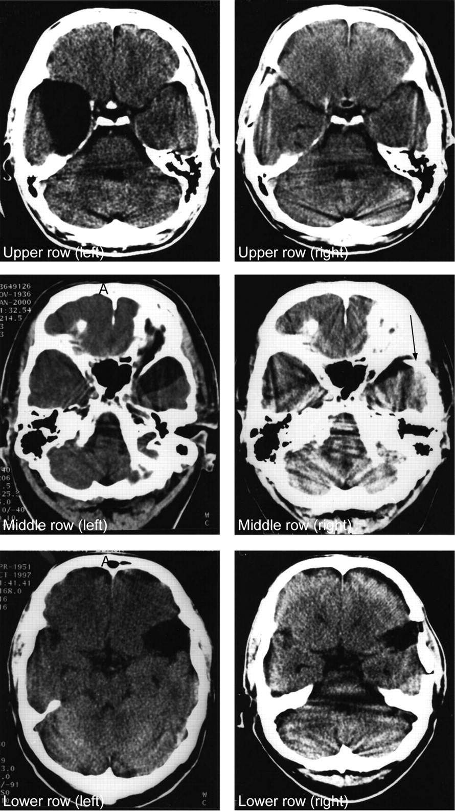 Arachnoid cyst of the brain. Clinical picture 87