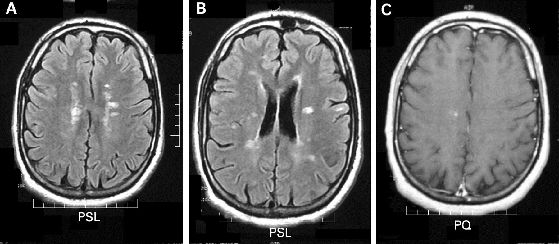 Demyelinating brain disease: treatment, predictions, symptoms