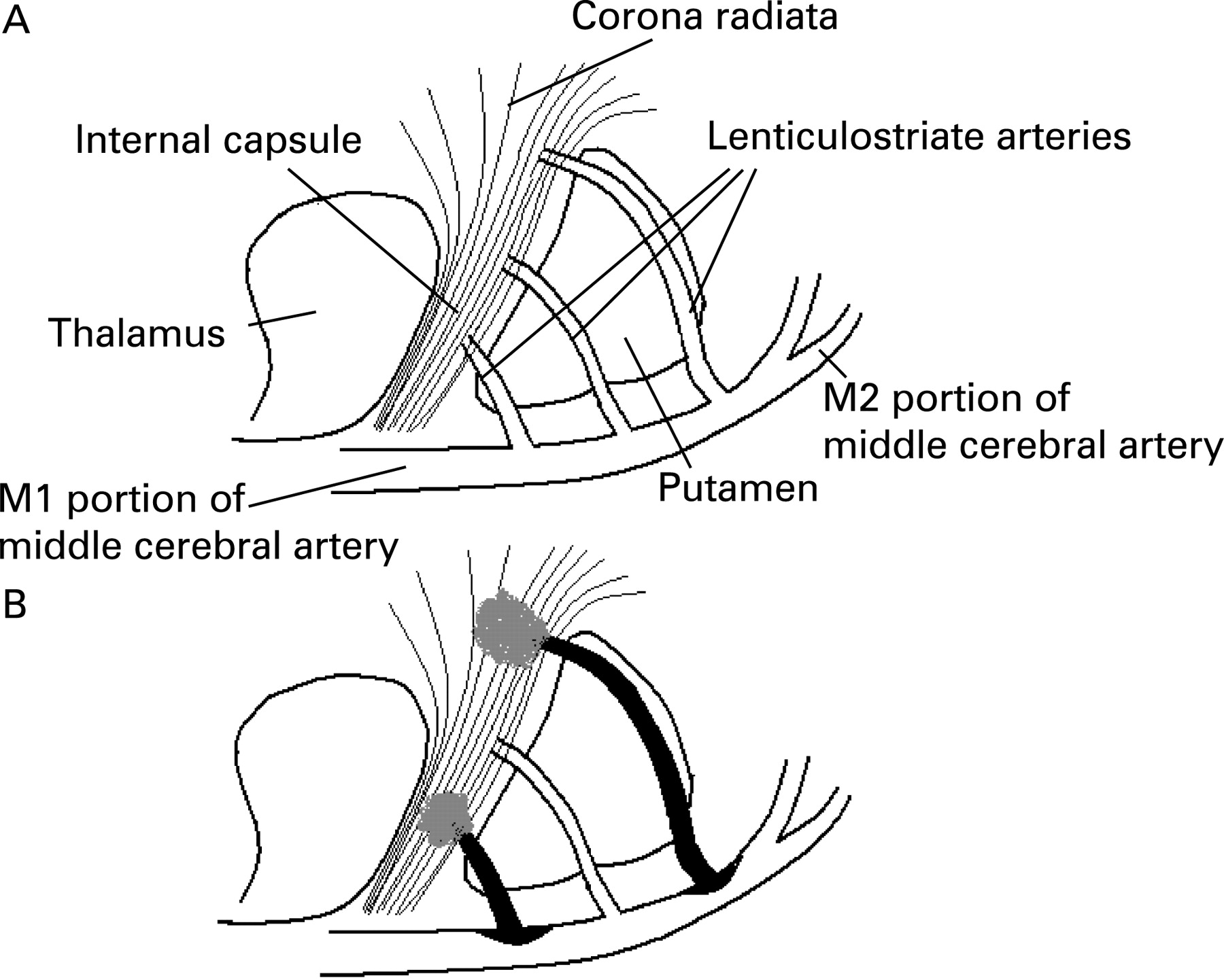 Location of single subcortical infarction due to middle cerebral ...