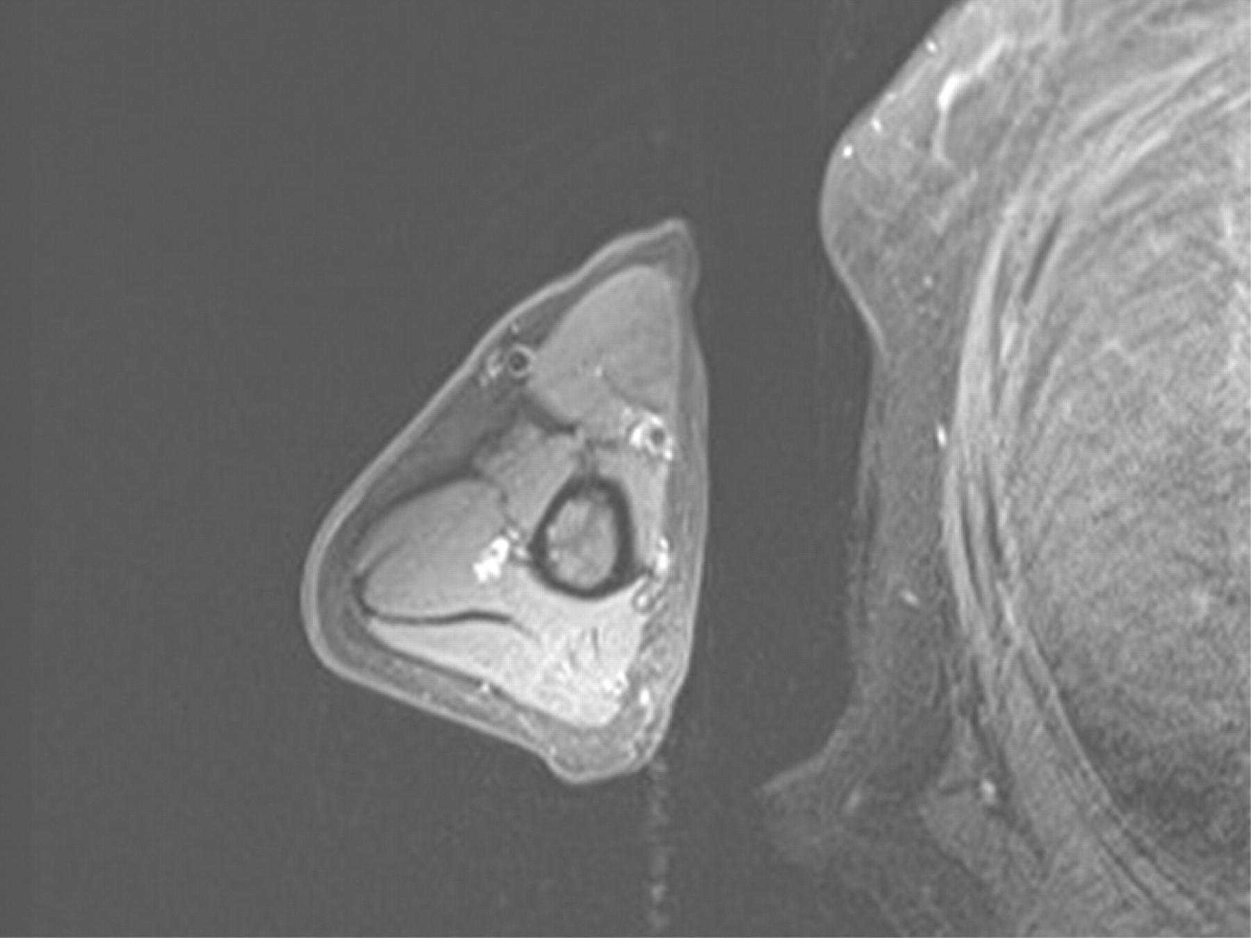 steroid myopathy emg findings