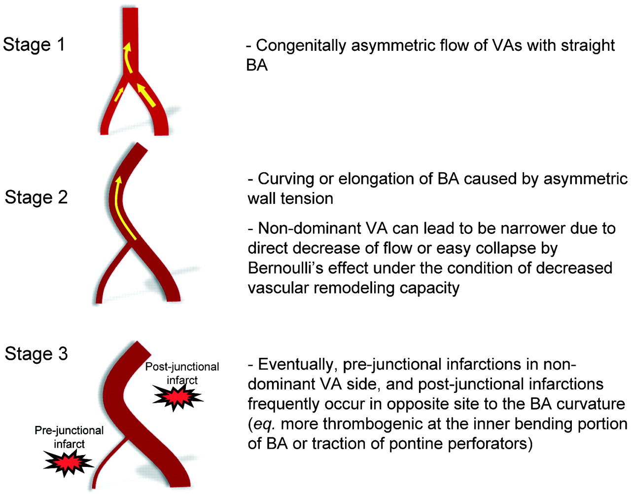 Vertebral artery dominance contributes to basilar artery curvature ...