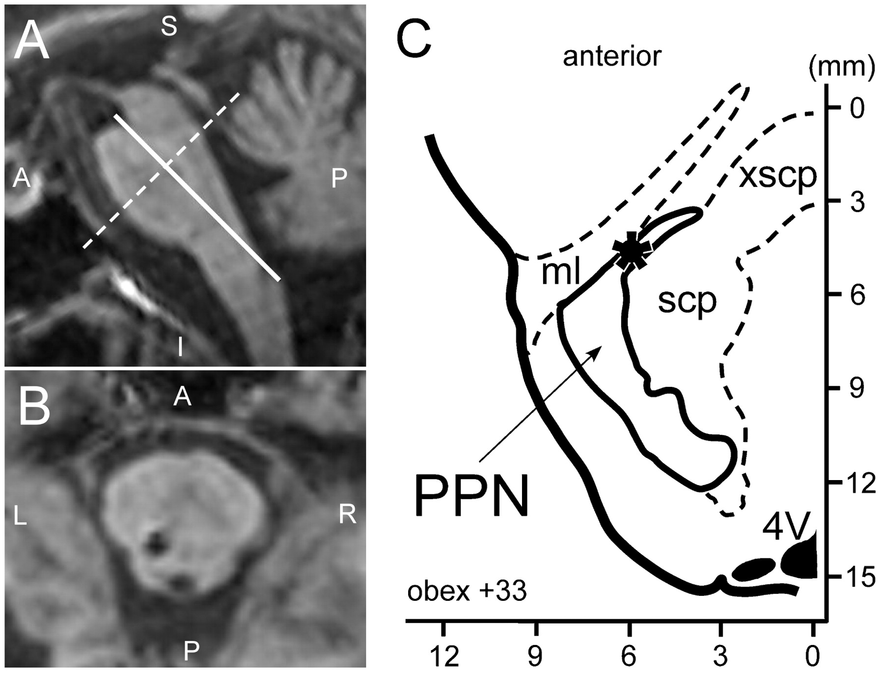 Physiological identification of the human pedunculopontine