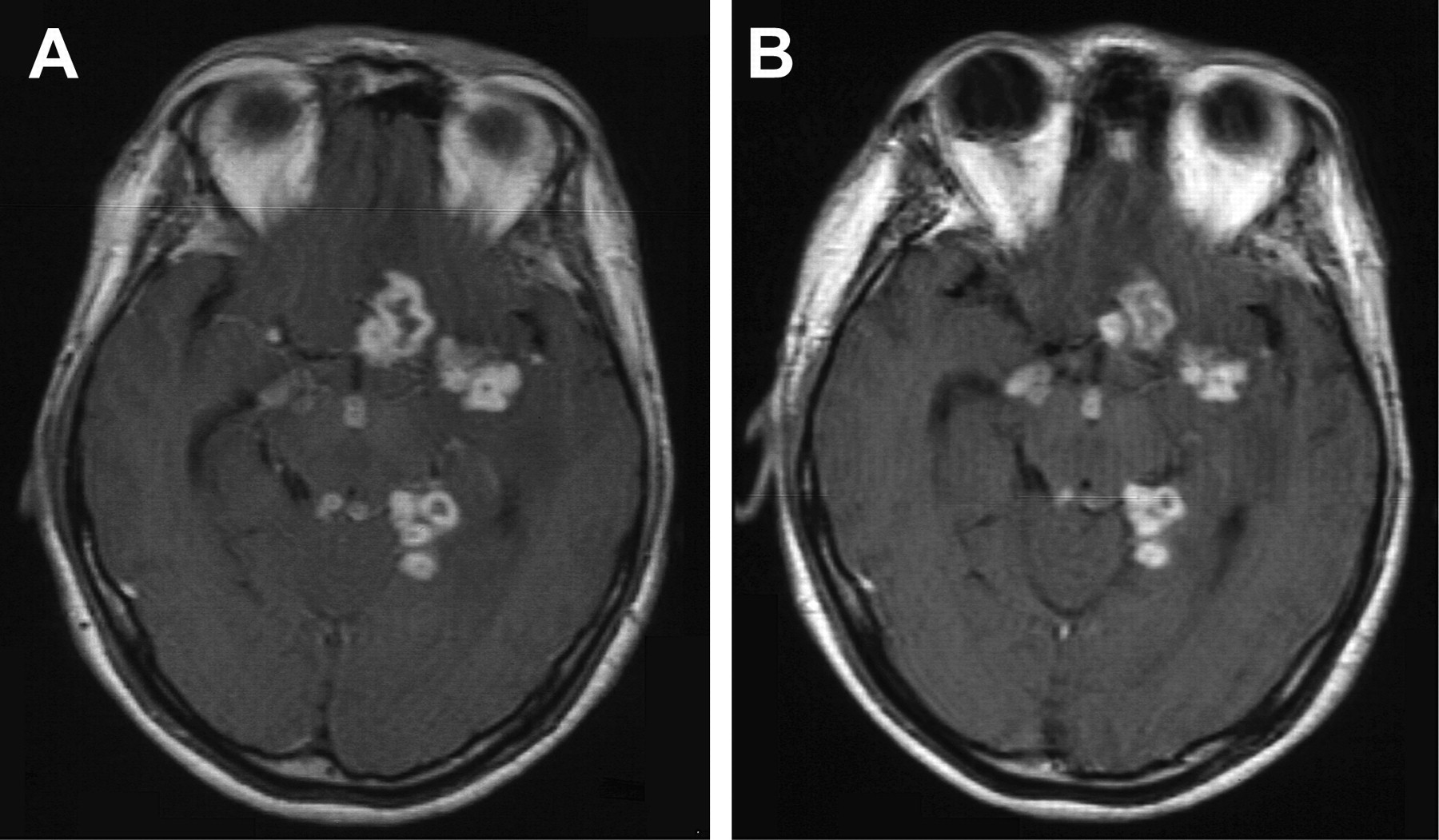 Normal Brain MRI with Contrast