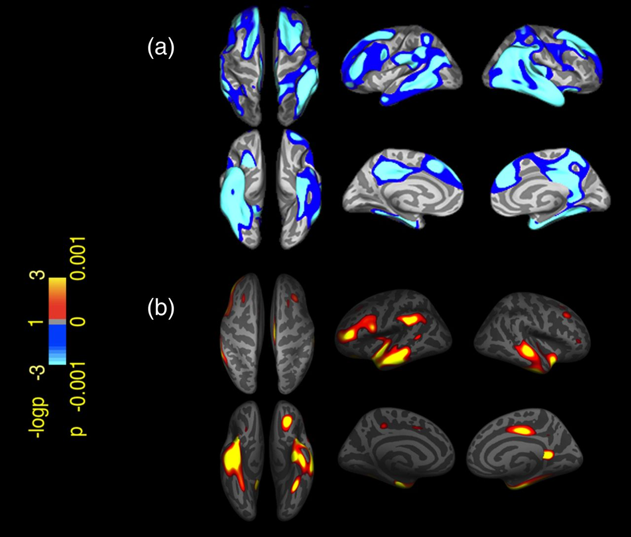 Parkinsons Disease Stages >> Cortical thinning is associated with disease stages and dementia in Parkinson's disease ...
