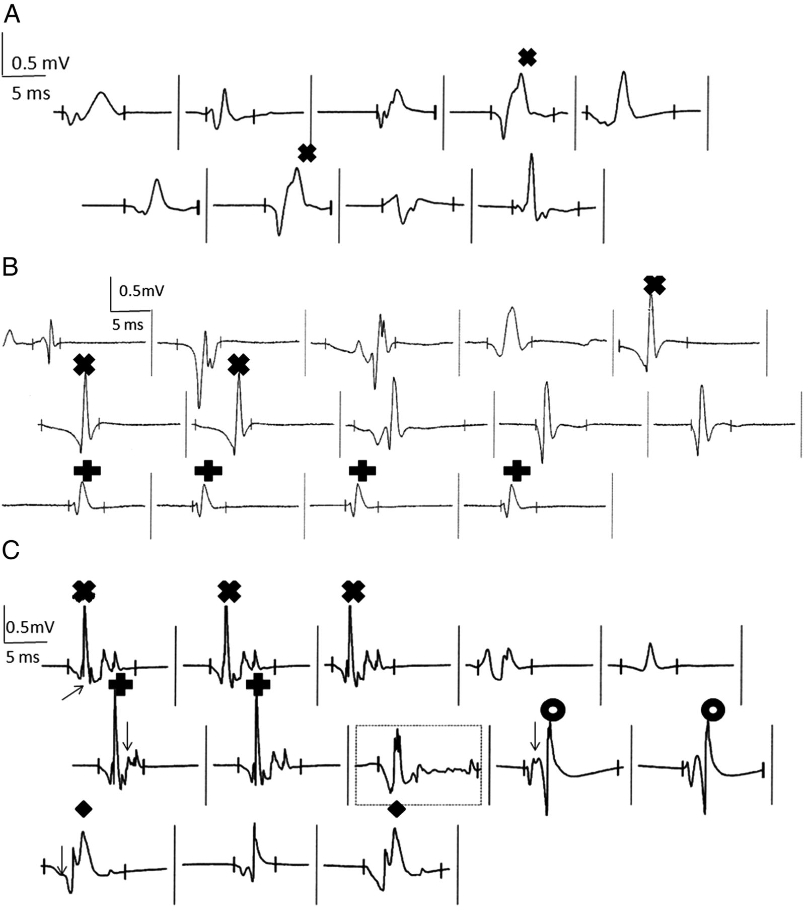 Fasciculation potentials and earliest changes in motor unit