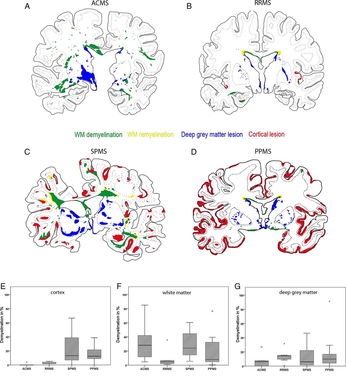 Multiple sclerosis deep grey matter: the relation between ...