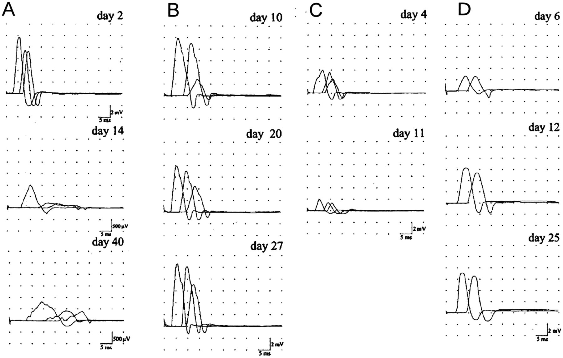 Nodopathies Of The Peripheral Nerve An Emerging Concept Journal 1980 B Tracker Wiring Diagram Schematic Download Figure
