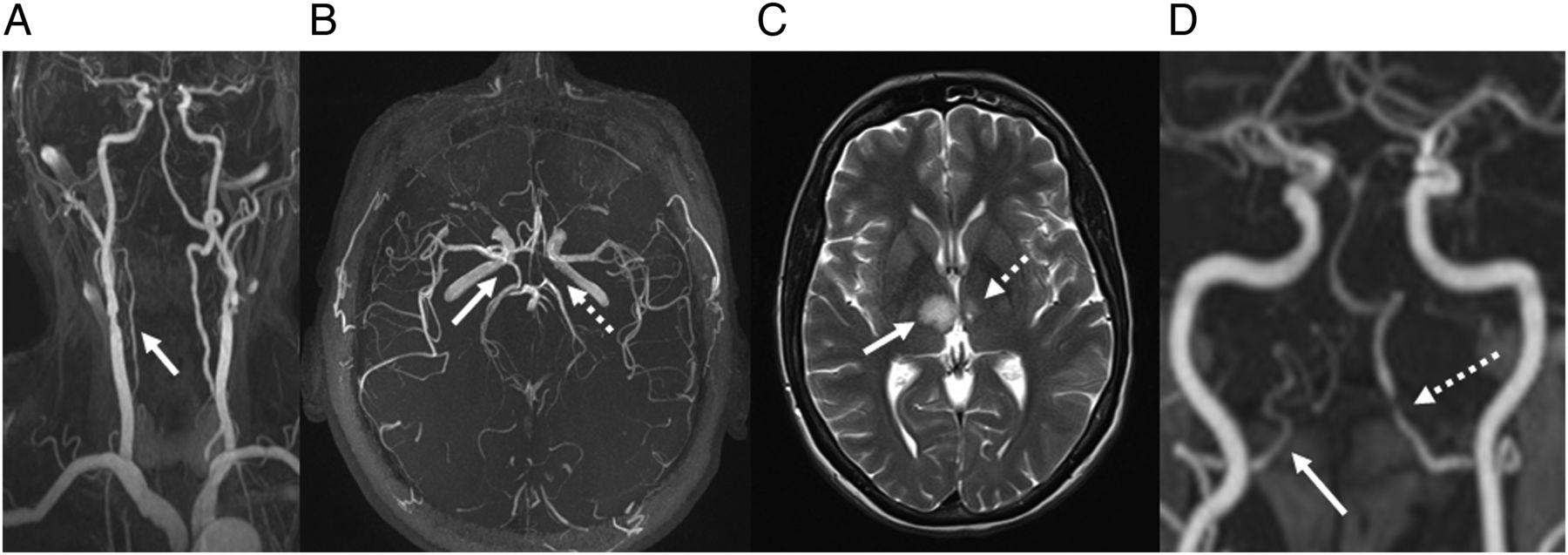 Posterior circulation cerebrovascular syndromes: diagnosis and ...