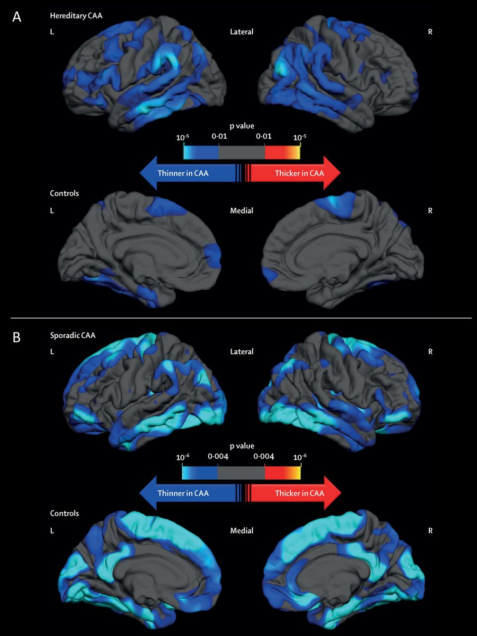 The increasing impact of cerebral amyloid angiopathy