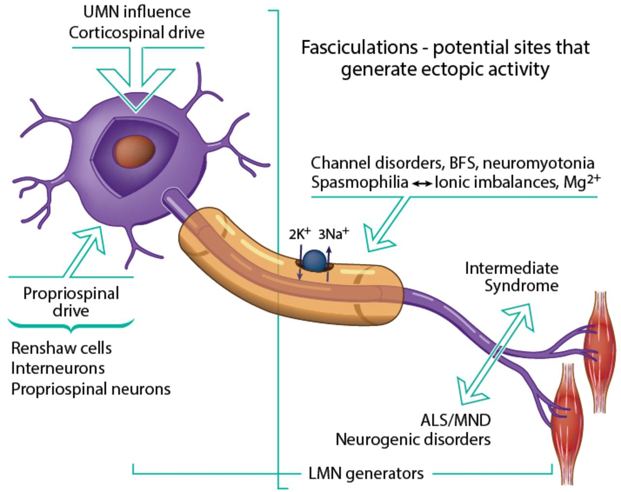 Fasciculation in amyotrophic lateral sclerosis origin and for Motor neuron disease symptoms early