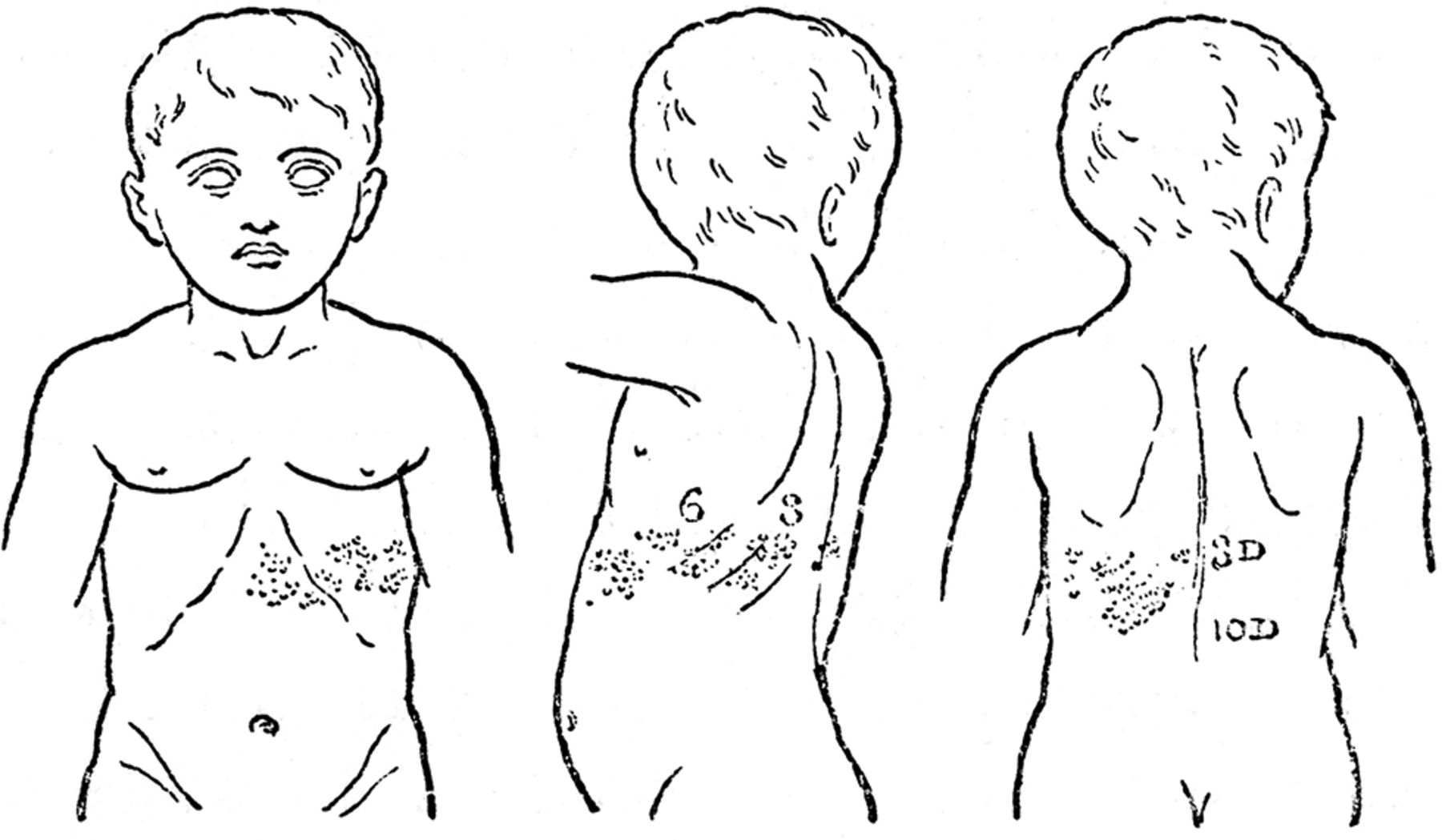 Henry Head Herpes Zoster And The Graphic Development Of His Scheme