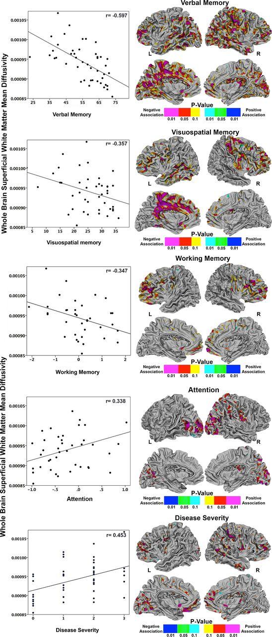 Superficial White Matter Damage In Anti Nmda Receptor Encephalitis