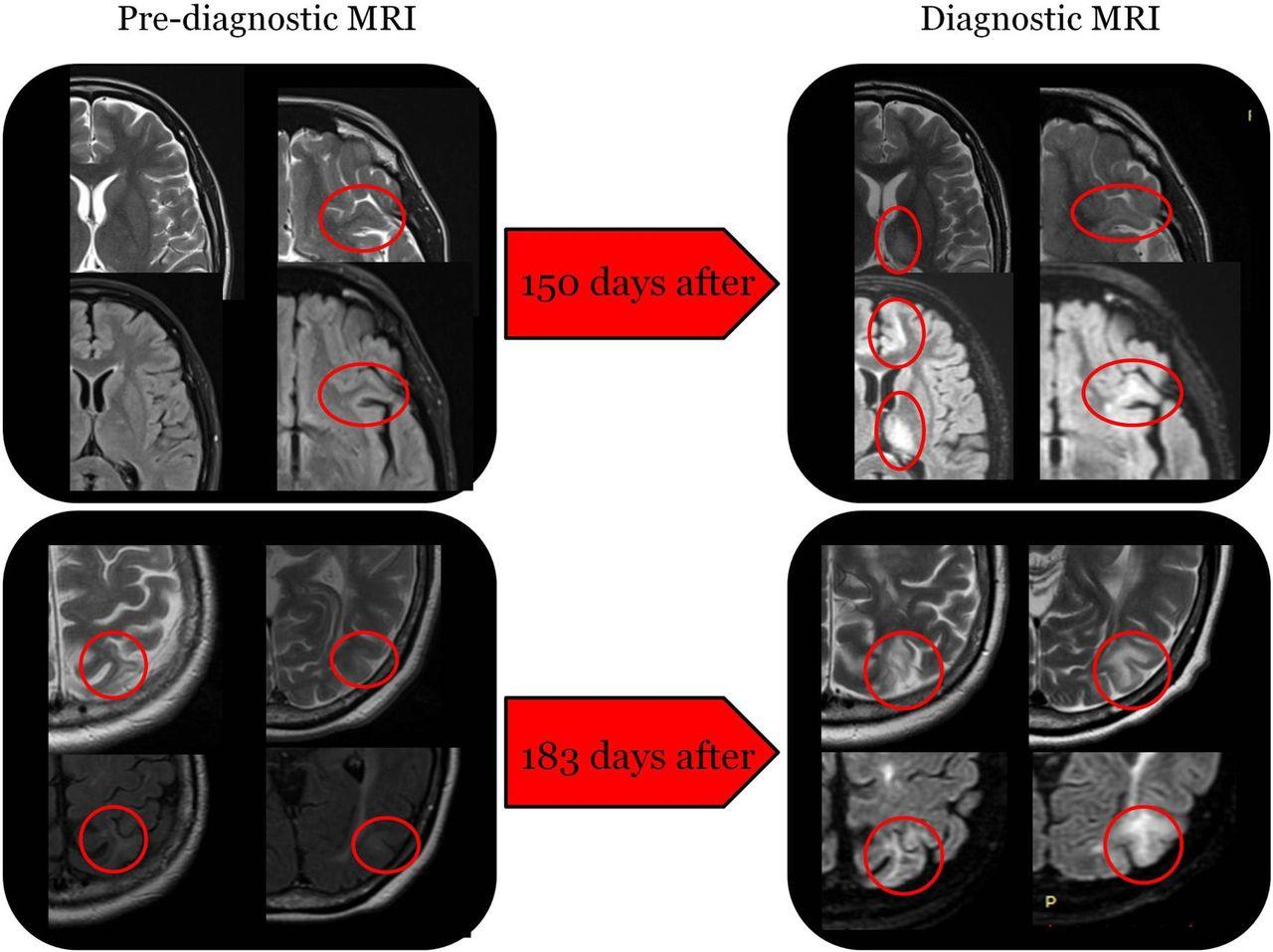 Early Diagnosis Of Progressive Multifocal Leucoencephalopathy