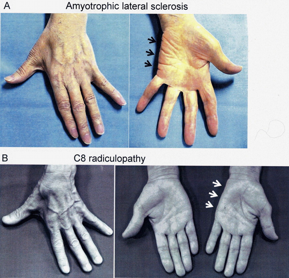 The split hand syndrome in amyotrophic lateral sclerosis for Motor neuron disease symptoms early