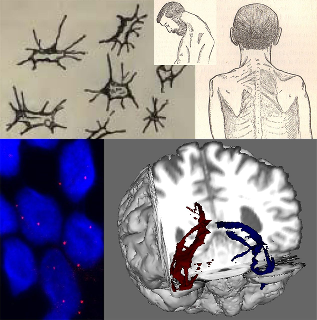 The Expanding Syndrome Of Amyotrophic Lateral Sclerosis A - Evolution visual effects last 130 years