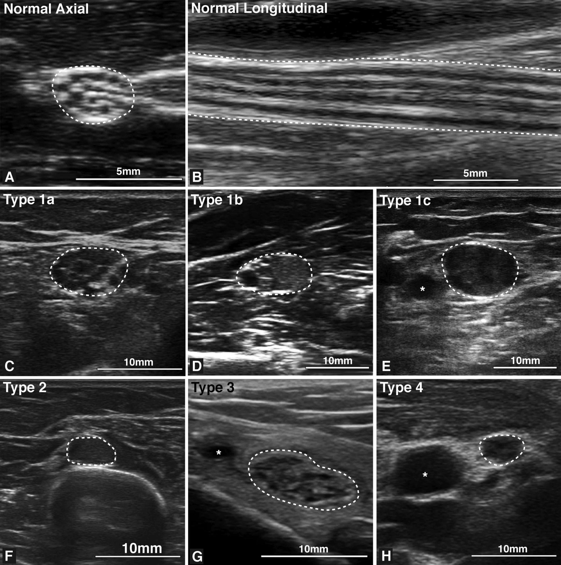 Ultrasound In The Diagnosis Of Peripheral Neuropathy