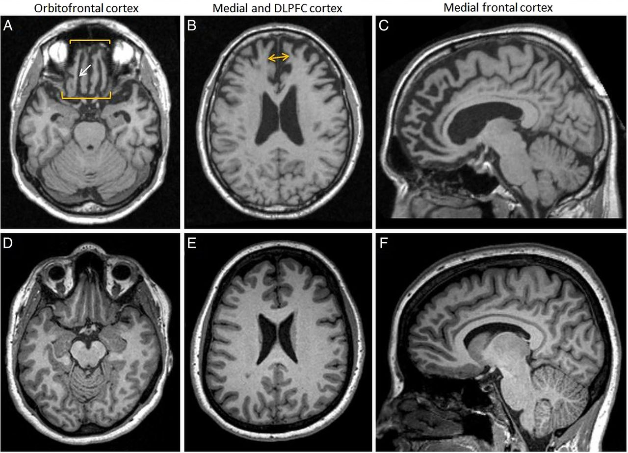 The behavioural variant frontotemporal dementia (bvFTD) syndrome in ...