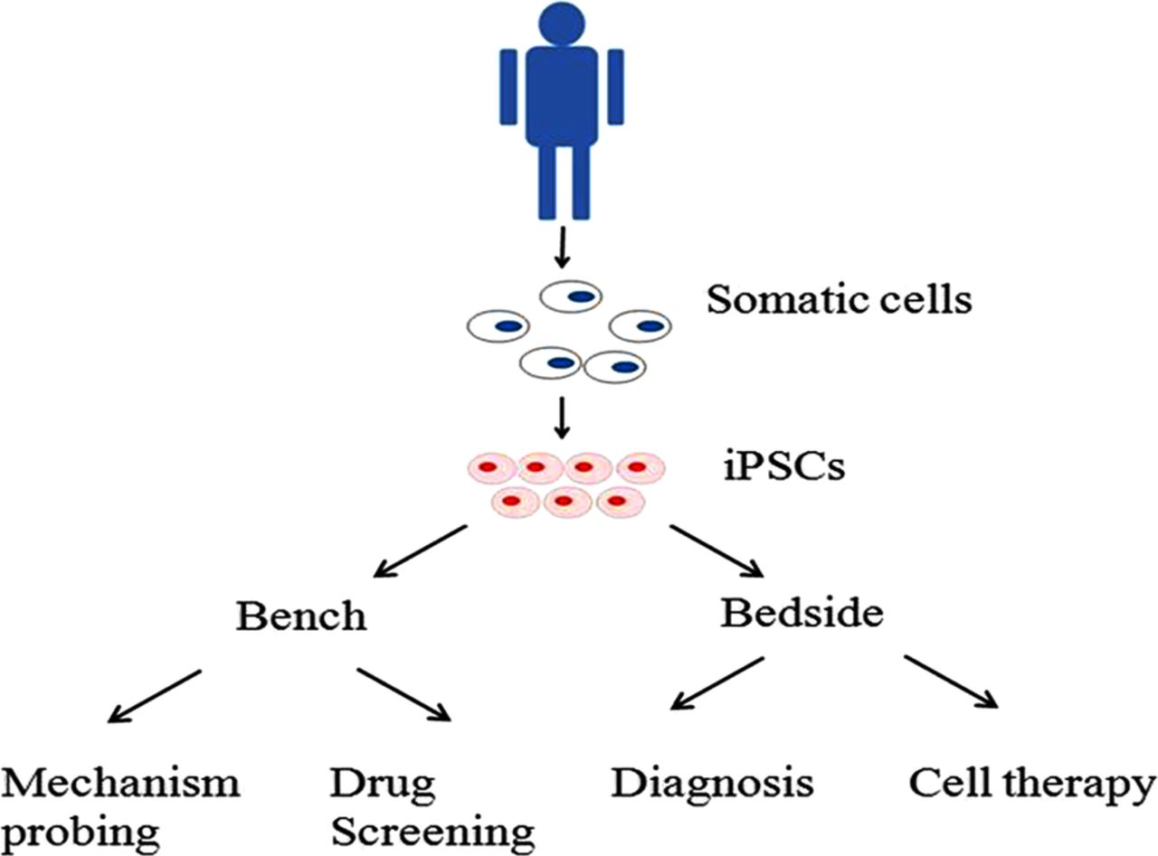 induced pluripotent stem cells in parkinson u0026 39 s disease