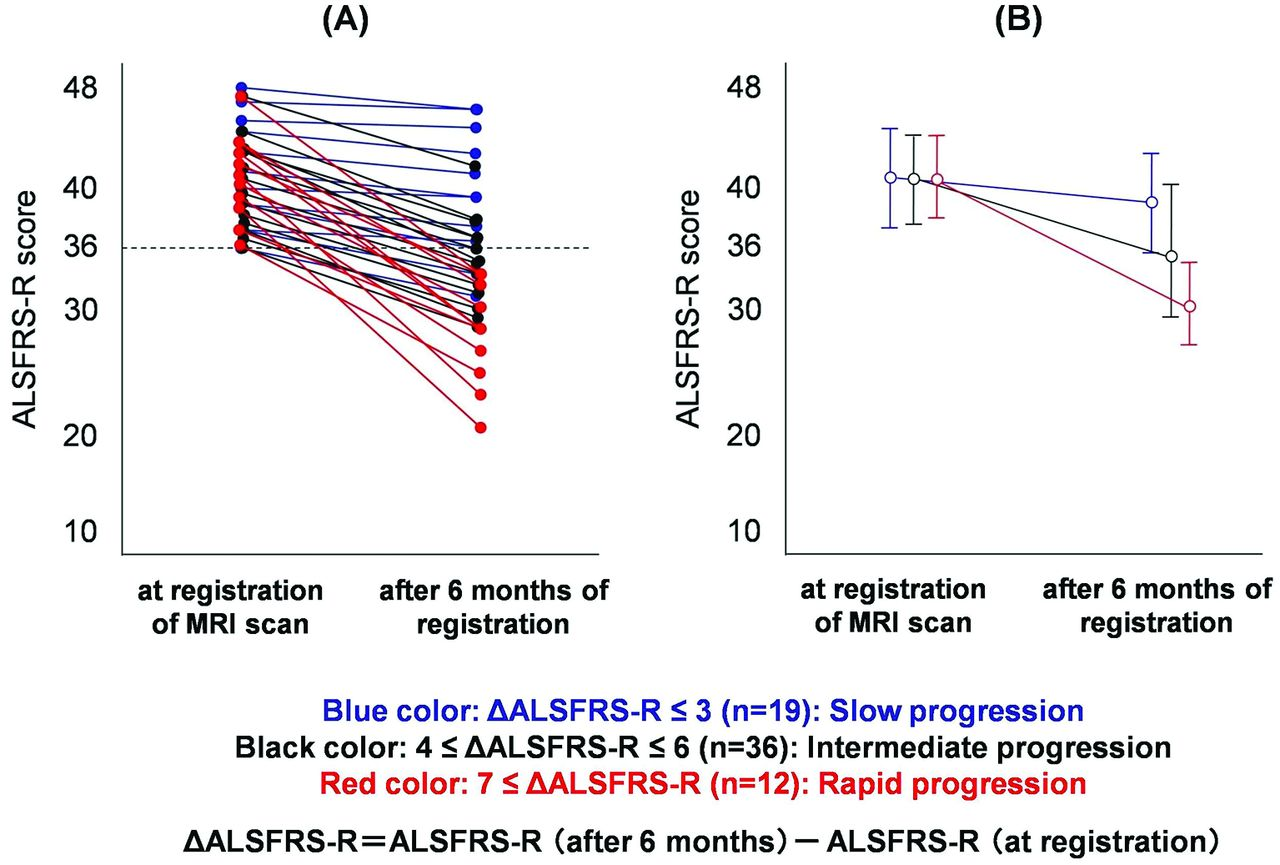 Structural MRI correlates of amyotrophic lateral sclerosis