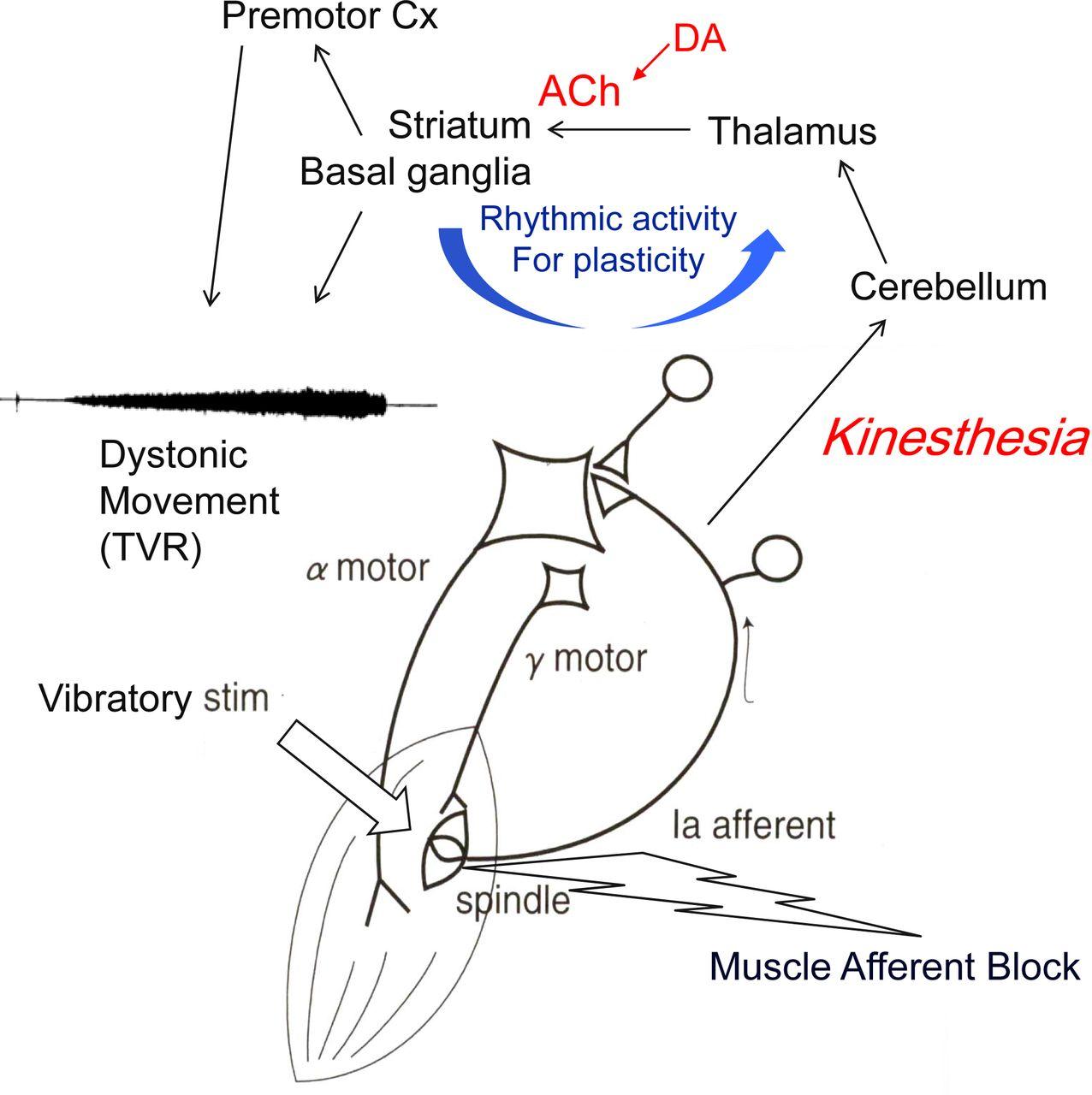 pathogenesis of dystonia  is it of cerebellar or basal