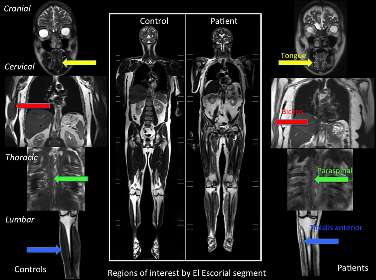 Imaging Muscle As A Potential Biomarker Of Denervation In Motor Printed Circuit Board Manufactureronline Quoteprinted Download Figure