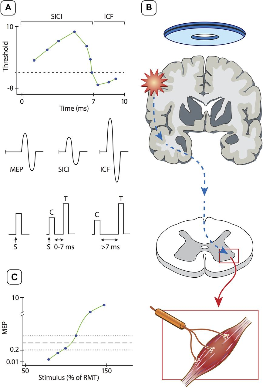 Interrogating Cortical Function With Transcranial Magnetic