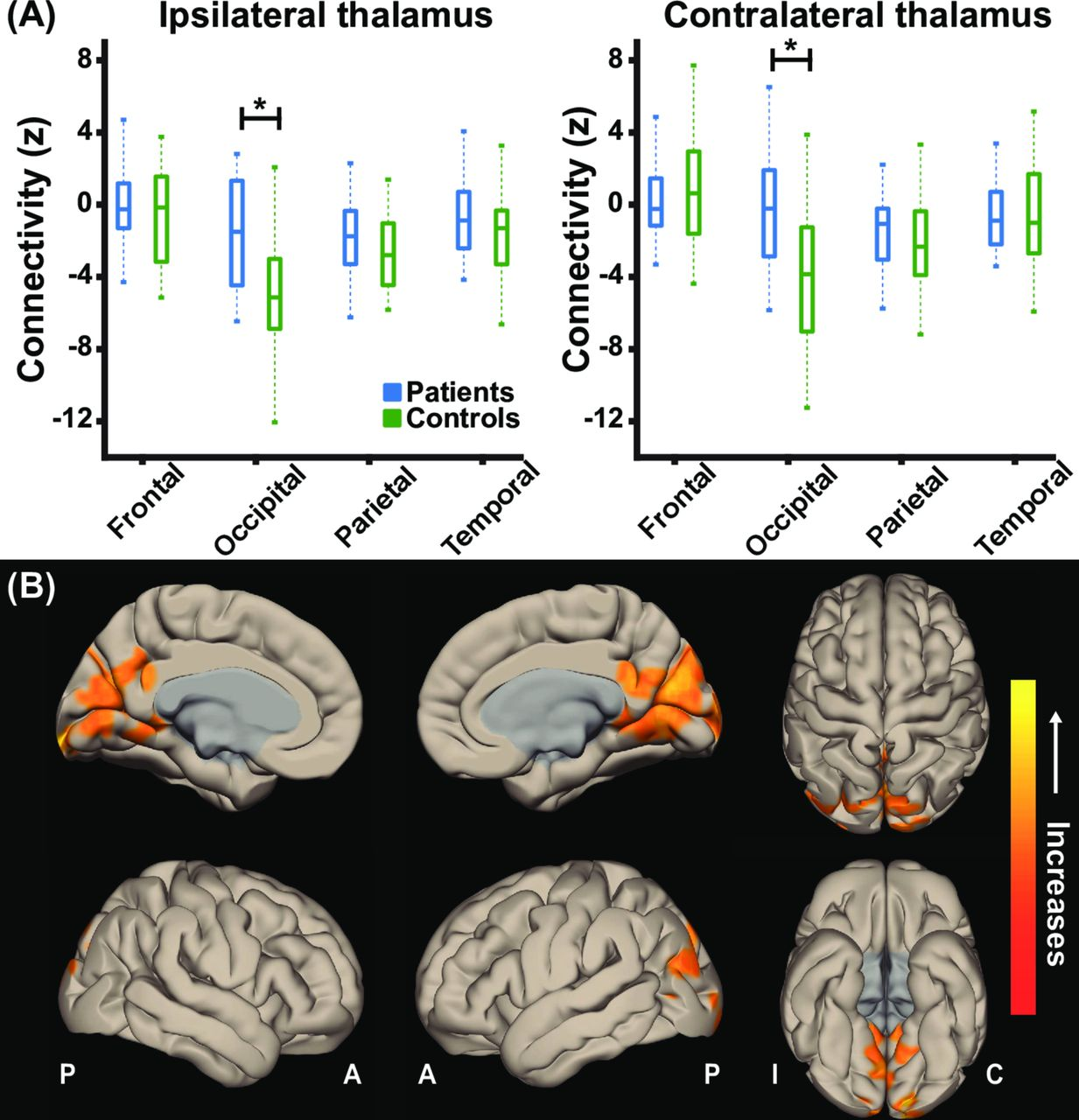 Thalamic arousal network disturbances in temporal lobe epilepsy and