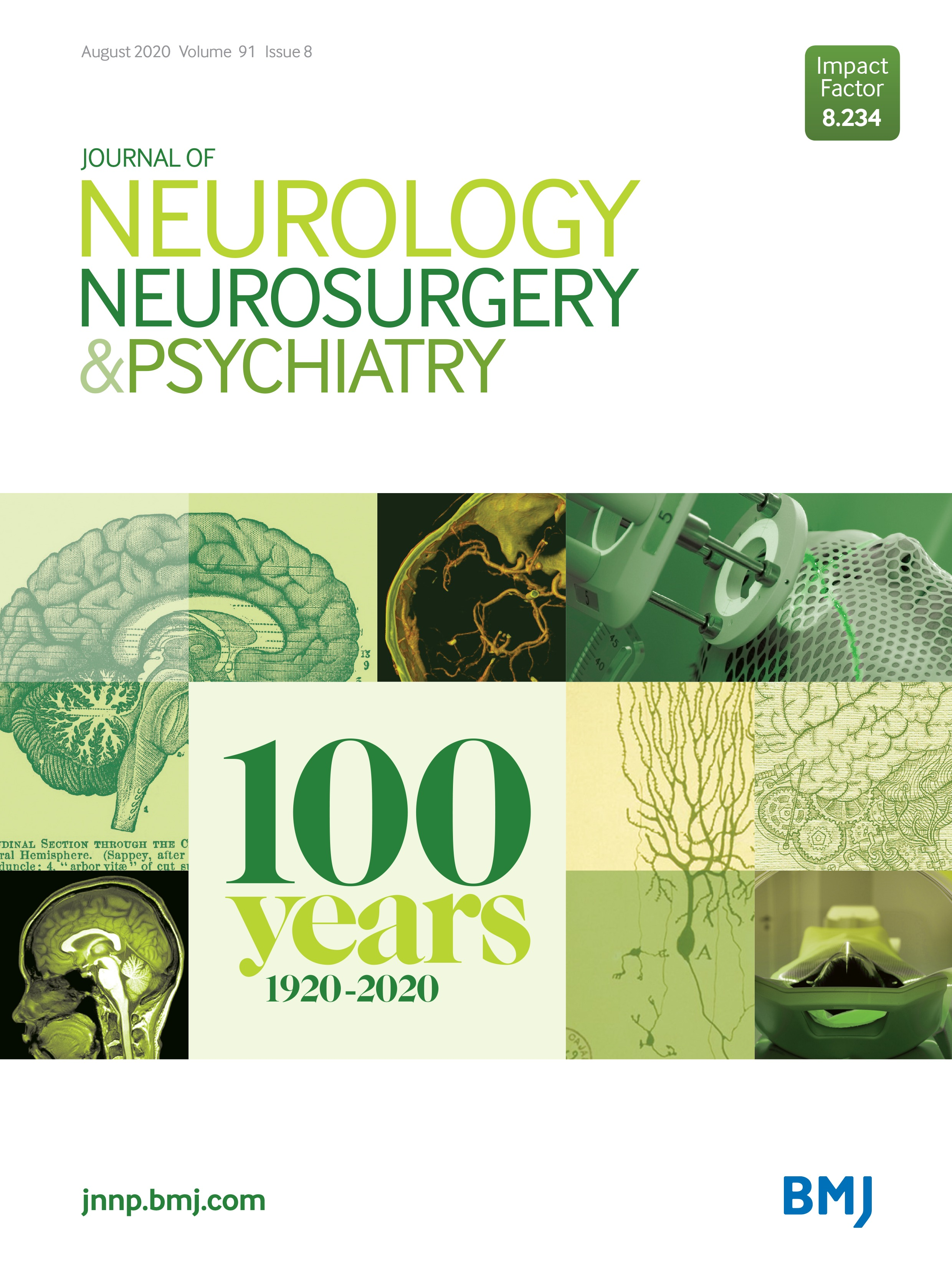 28The link between functional neurological disorder (FND) & migraine: a systematic review